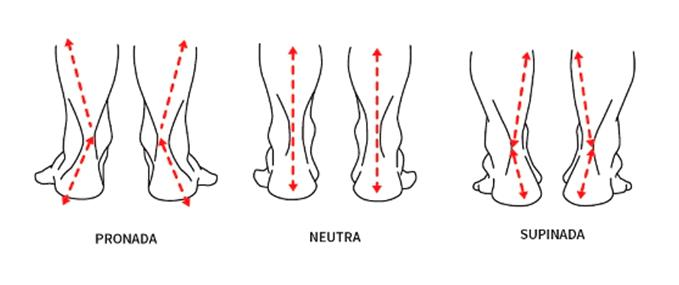 Imagem ilustrativa mostrando os tipos de pisada possíveis.