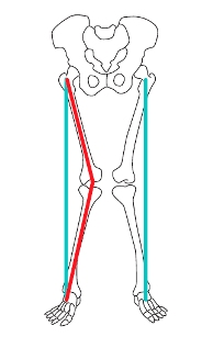 4. Pé desabado causando desalinhamento do tornozelo e joelho