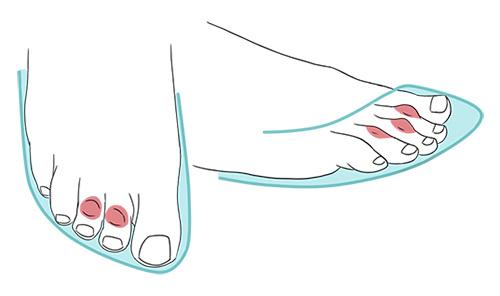 Ilustração de calçado apertado