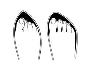 1. Calçados apertados e com bico fino