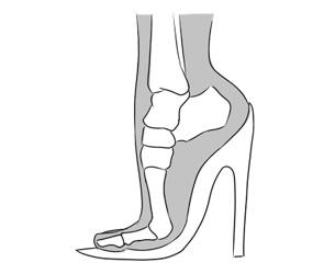 dor no primeiro metatarso calcado sapato apertado