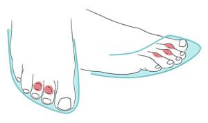 Imagem ilustrativa da fricção entre os dedos e o calçado.