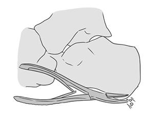 2. Cirurgia de remoção do esporão de calcâneo