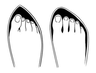 Comparação entre calçado inadequado com calçado adequado
