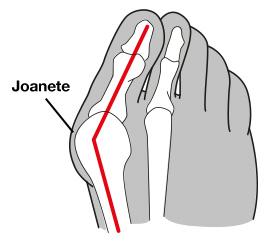 Imagem ilustrativa da região acometida pela joanete.