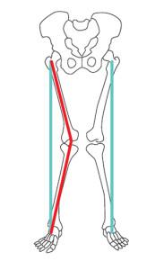 Imagem ilustratativa mostrando o não alinhamento dos joelhos em valgo.