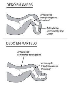 Comparação entre o dedo em martelo com o dedo em garra.