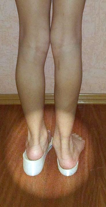 Imagem de uma criança que tem uma perna maior que a outra com as palmilhas pés sem dor