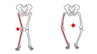 Alinhamento dos joelhos