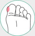 icone ilustrativo de calos nos pés
