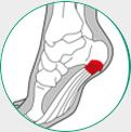 icone ilustrativo para esporão de calcaneo