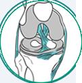 icone ilustrativo para lesão de menisco